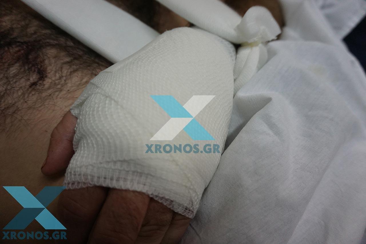 Σοκ από την επίθεση με μαχαίρι που δέχθηκε αστυνομικός στη Ροδόπη από αλλοδαπό